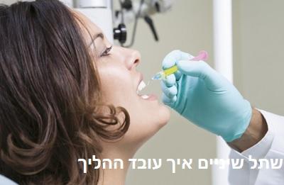 שתל שיניים איך עובד ההליך